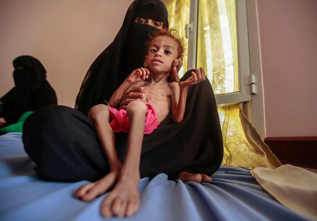 Skrajnie niedożywione dziecko w szpitalu w Jemenie