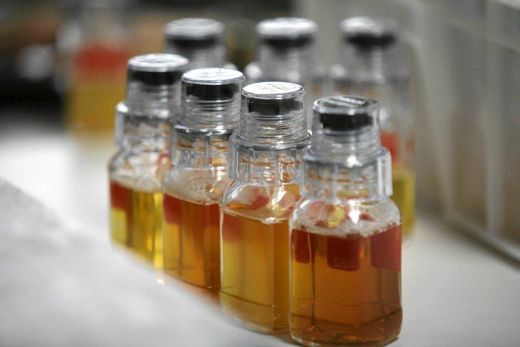 Próbki moczu do badania antydopingowego