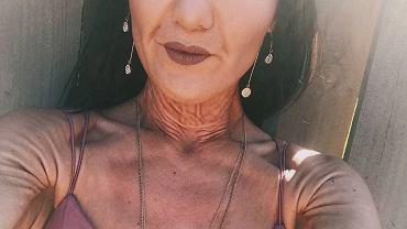 W wyniku EDS skóra Sary jest nadmiernie elastyczna.