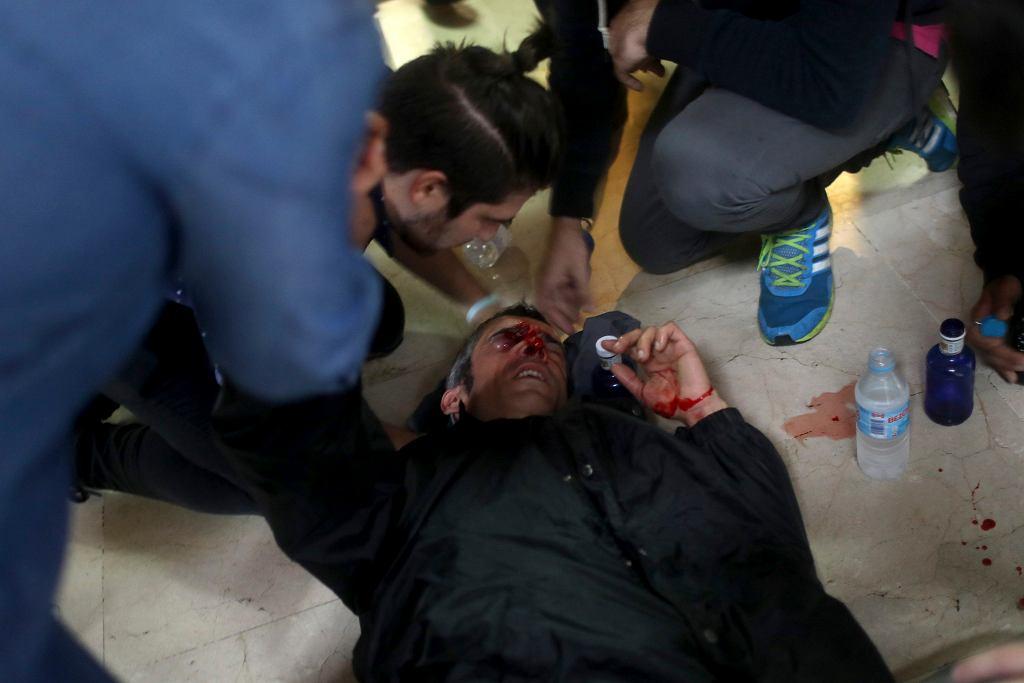 01.10.2017 , Barcelona . Zwolennik referendum na temat niepodległości Katalonii ranny od gumowej kuli wystrzelonej przez policję .