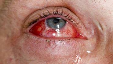 Najbardziej charakterystycznym objawem choroby jest tzw. naciekowy wytrzeszcz oczu. Wokół gałki ocznej dochodzi do nacieków, które mogą prowadzić do poważniejszych problemów ze wzrokiem