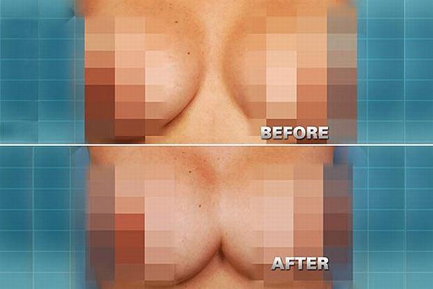 Kobieta po nieudanej operacji plastycznej obudziła się z jedną piersią zamiast z dwoma.