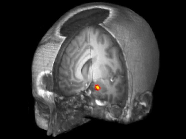 Ciało migdałowate leży w głębi mózgu. Odpowiada za przetwarzanie wspomnień i reakcje emocjonalne. Czy Facebook sprawia, że pojawia się tam więcej szarej materii?