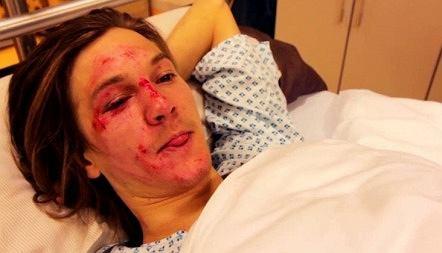 Tom Hilde po wypadku