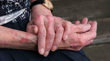 Zmiany skórne wywołane egzemą pojawiają się w okolicy łokci, kostek, nadgarstków i twarzy
