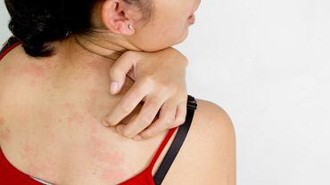 Maść Triderm działa antybakteryjnie i przeciwzapalnie