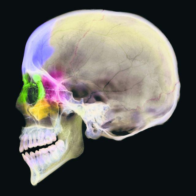 Zdjęcie rentgenowskie ludzkiej czaszki z widocznymi zatokami przynosowymi. Żółte - zatoki szczękowe, zielone - zatoki sitowe, czerwone - zatoki klinowe i fioletowe - zatoki czołowe