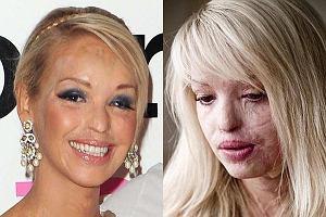 Katie Piper została rok temu oblana kwasem przez mężczyznę, którego wynajął jej chłopak. Wciąż był o nią zazdrosny. Modelka ma 26 lat i dzięki operacjom plastycznym jej twarzy nie szpecą już wstrętne blizny.