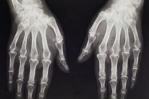 artroza u psow)