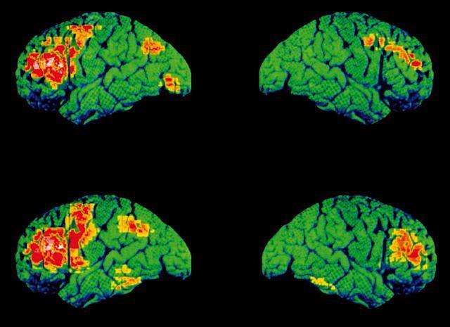 Schizofrenia. Pozytonowa tomografia emisyjna lewej i prawej półkuli mózgowej osoby zdrowej (na górze) oraz osoby dotkniętej schizofrenią (na dole), mierzonych podczas mówienia. Obszary zaznaczone kolorem żółtym i czerwonym pokazują, jak znaczne są różnice pomiędzy obszarami mózgu uaktywnionymi podczas rozmowy u pacjenta zdrowego i u schizofrenika