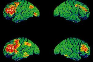 Schizofrenia - nieleczona choroba odbiera sens życia
