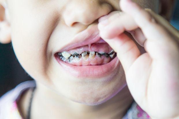 Próchnica zębów mlecznych to problem, którego nie można bagatelizować!