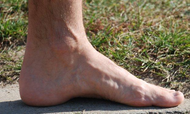 Shin Splints. Powracający problem biegacza