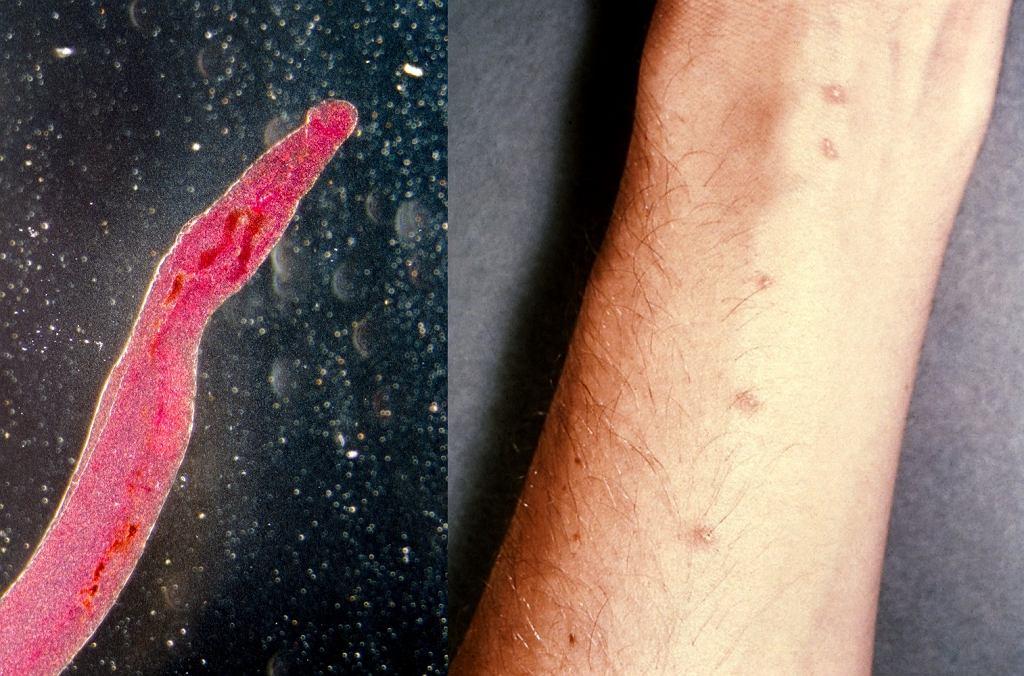 Przywra żylna wywołująca schistosomatozę i wysypka pęcherzykowa w początkowym okresie schistosomatozy