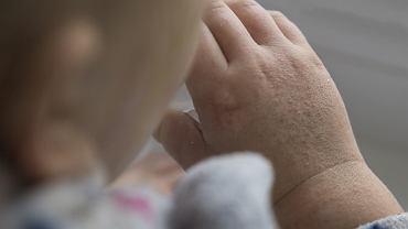 Jakie są przyczyny i objawy płonicy (szkarlatyny) u dzieci? Jak się ją diagnozuje i leczy?