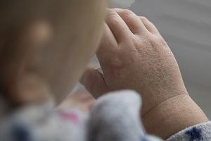 Płonica (szkarlatyna) u dziecka - przyczyny, objawy, leczenie