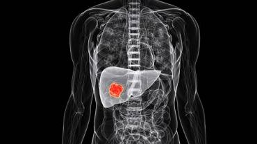 Zła dieta i alkohol to najczęstsze przyczyny zmian chorobowych w wątrobie