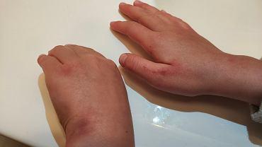 Ręce córki posłanki PiS Anny Marii Siarkowskiej po tygodniu dezynfekcji przed każdą lekcją w szkole