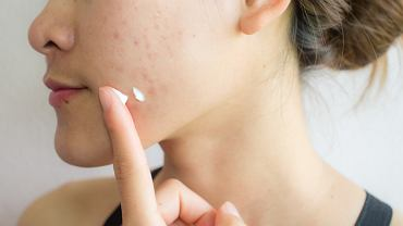 Maść ichtiolowa pomaga w walce z trądzikiem, czyrakami, wypryskami czy obrzękami