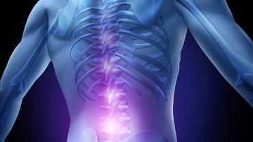 Pierwszym objawem dyskopatii najczęściej jest ból w okolicy lędźwiowej