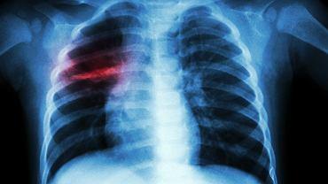 Gruźlica to choroba wywoływana przez prątki gruźlicy, czyli bakterie Mycobacterium tuberculosis
