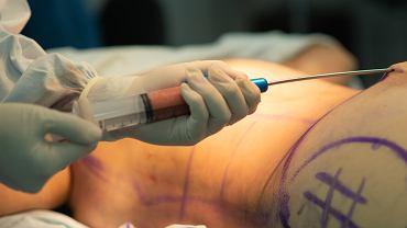 Liposukcja, potocznie lipo, jest to zabieg, polegający na usunięciu tkanki tłuszczowej z wybranych partii organizmu