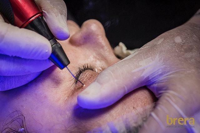 Odmładzamy skórę oczu z medycyną estetyczną