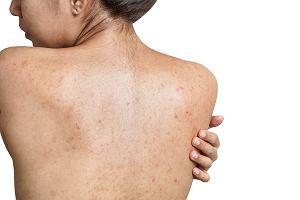 Pryszcze na plecach - przyczyny i sposoby leczenia