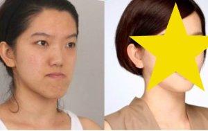 Operacje plastyczne na Dalekim Wschodzie. Przed i po, metamorfozy