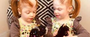 Bliźniaczki syjamskie rozdzielono, gdy były niemowlętami. Dziś dziewczynki mają pięć lat