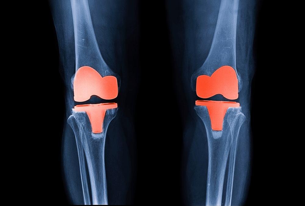 Endoproteza stawu kolanowego to sztuczny staw, który ma przypominać i spełniać funkcje tego prawdziwego