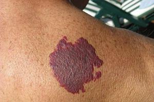 Toczeń rumieniowaty układowy - objawy, diagnoza, leczenie