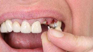 Protezy częściowe zakładane są gdy pacjent ma mieć usunięty jeden lub więcej zębów