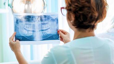 Endodonta - to lekarz, specjalista z zakresu stomatologii