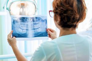 Czym zajmuje się endodonta? Na czym polega endodoncja?