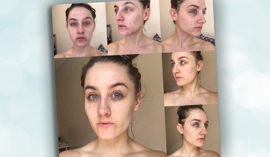 Oczyszczanie twarzy płynem micelarnym - czy to dobry sposób?