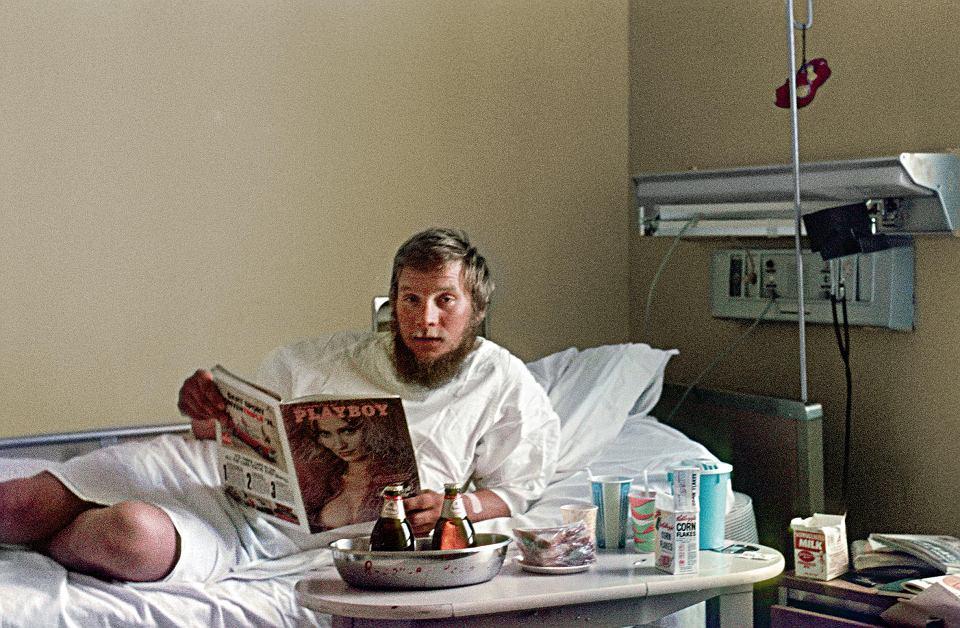 Jerzy Kukuczka w szpitalu w Anchorage na Alasce, leczy odmrożenia po wspinaczce na Mount McKinley (6198 m n.p.m.), 1974 r. Dużego palca stopy nie udało się uratować