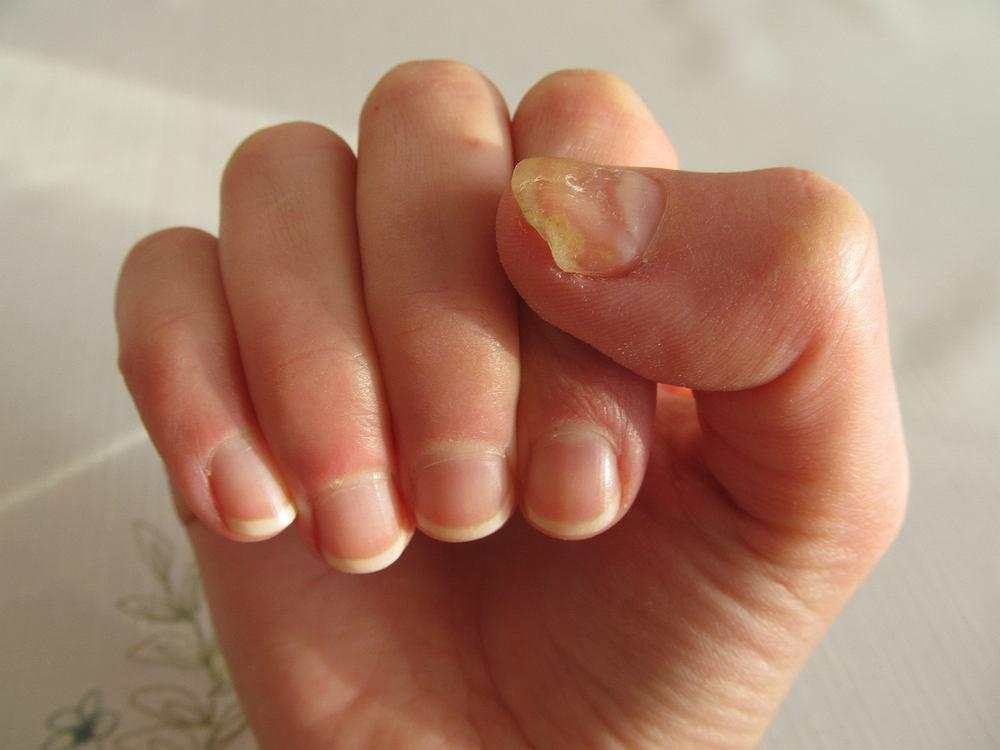 Najczęściej pojawiające się choroby paznokci nóg i rąk to grzybica, drożdżyca, zanokcica, łuszczyca paznokci oraz onycholiza.