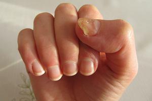 Choroby paznokci - najczęściej występujące dolegliwości