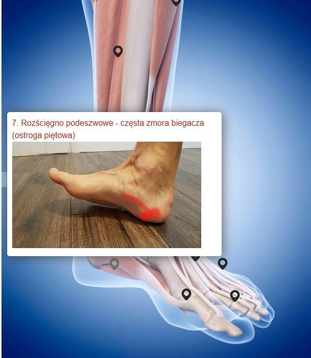 Mapa bólu stopy