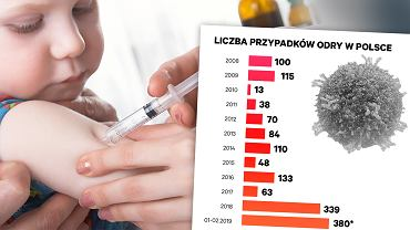 W 2019 roku gwałtownie wzrasta liczba zachorowań na odrę