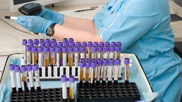 Hematokryt to stosunek objętości erytrocytów do objętości całej krwi