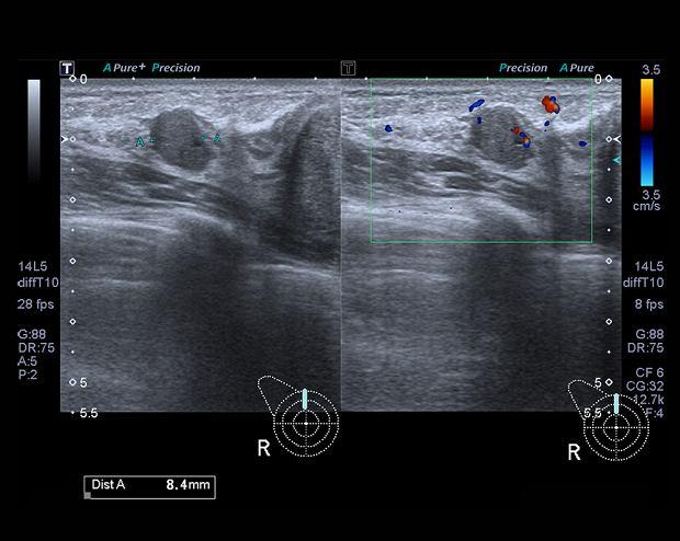 USG sutków (piersi): na czym polega. Kiedy przeprowadza się USG piersi, a kiedy mammografię?