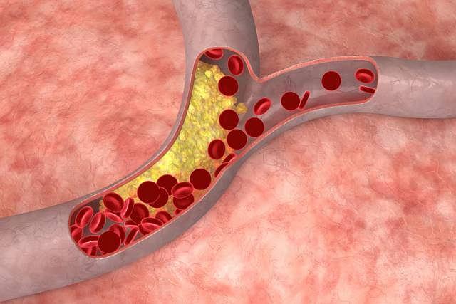 Zator w tętnicy krezkowj najczęściej spowodowany jest chorobą serca