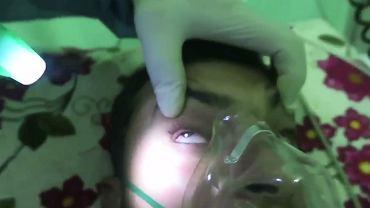 Lekarz pokazuje osoby, które mogą być ofiarami ataku gazem bojowym