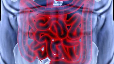 Biegunka oraz silny ból brzucha to najczęstsze objawy wrzodziejącego zapalenia jelita