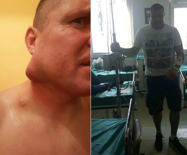 Mirosław Okniński walczy z nowotworem