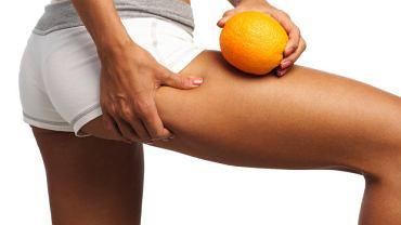 Przed wakacjami warto postarać się zredukować pomarańczową skórkę. Na plaży będziemy czuć się piękniej.