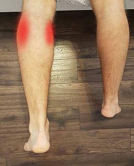 Kontuzja stopy: mięsień brzuchaty łydki