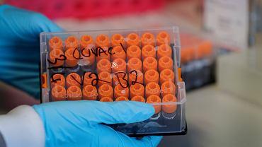 Testy szczepionki na koronawirusa